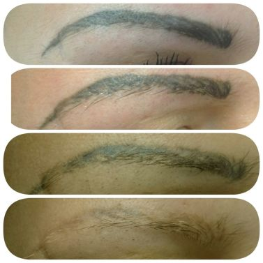 All You Need to Know about Eyebrow Tattoo Removal | Creativity Is ...